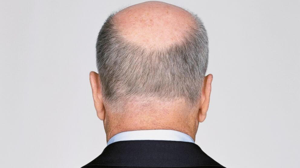 Propecia is used to handle male-pattern hair loss