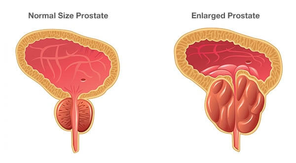 What are symptoms of benign prostatic hyperplasia